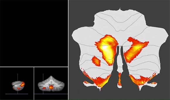 Cerebellum scan