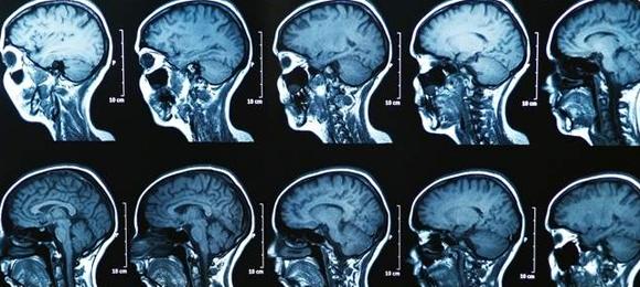 Brain image scans